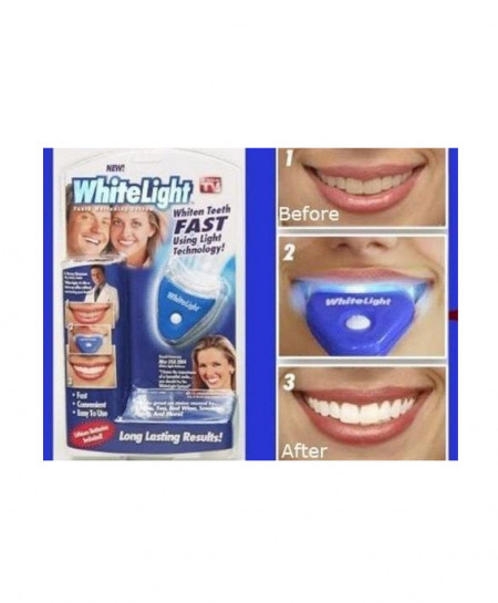 White Light Whiten Teeth Fast Technology